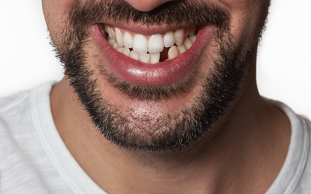 Why you should replace missing teeth